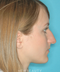 dr-david-kim-rhinoplasty-b