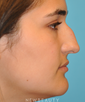 dr-david-hecht-rhinoplasty-b