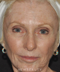 dr-elizabeth-callahan-injectable-fillers-skin-resurfacing-ablative-laser-b
