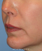 dr-kelly-bomer-facelift-chin-augmentation-b