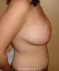 dr-michael-horn-breast-reduction-b