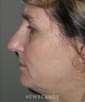 dr-michael-epstein-facelift-upper-blephs-fat-graft-tca-peel-b