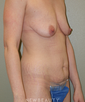 dr-michael-epstein-abdominoplasty-breast-lift-b