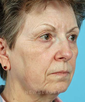 dr-robert-sigal-blepharoplasty-browlift-lift-facelift-necklift-rhinoplasty-skin-resurfacing-b