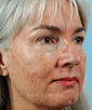 dr-robert-sigal-skin-resurfacing-ablative-b