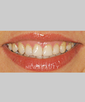 washington-dentistry-gum-contouringveneers-b