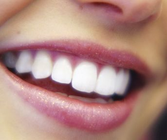 Why Your Yellow Teeth Are Aging You