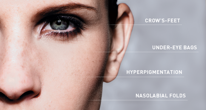 Stop The First Signs Of Aging  Hot Topic  Newbeauty. Stigma Signs Of Stroke. Pediatrics Signs Of Stroke. Cognitive Impairment Signs Of Stroke. Baby Boy Signs Of Stroke. Normal Chest Signs Of Stroke. Dust Signs. Commonly Used Signs. Panic Signs Of Stroke