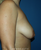 dr-jeremy-benedetti-breast-augmentation-b