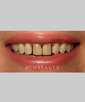 dr-joe-willardsen-gum-lift-teeth-whitening-tooth-contouring-veneers-b