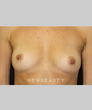 dr-leonard-hochstein-breast-augmentation-b