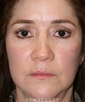 dr-michael-epstein-facelift-bleph-fat-transfer-tca-peel-b