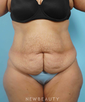 dr-george-weston-tummy-tuck-liposuction-b