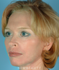dr-robert-sigal-blepharoplasty-browlift-lift-facelift-necklift-b