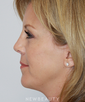 dr-mark-murphy-facelift-chin-augmentation-eyelift-b