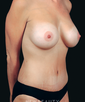 dr-geoffrey-leber-mommy-makeover-breast-augmentation-liposuction-tummy-tuck-b