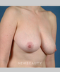 dr-bradley-calobrace-breast-lift-b