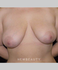 dr-earl-parrish-breast-augmentation-b