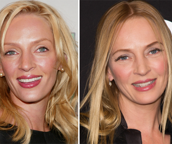 Why Does Uma Thurman Look So Different?