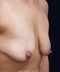 dr-michael-orseck-breast-augmentation-breast-lift-b