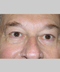 dr-ramin-tayani-lower-blepharoplasty-b
