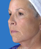 dr-goesel-anson-facelift-browlift-blepharoplasty-juvederm-injections-b