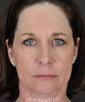 dr-goesel-anson-blepharoplasty-facelift-fat-transfer-juvederm-browlift-b