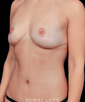 dr-daniel-yamini-breast-lift-mommy-makeover-tummy-tuck-b