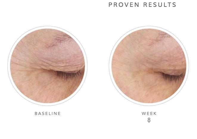 Under Eye Veins Natural Treatment