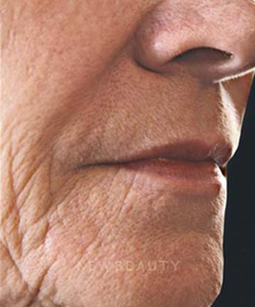 Dr Vivian Bucay Dermatologist San Antonio Texas